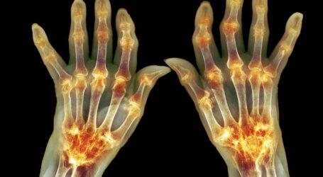 Холод та біль: про осіннє загострення болю в суглобах попереджають лікарі Кам'янського