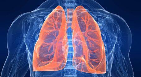 Як і чому легені мешканців Кам'янського перестають дихати