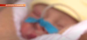 Кинутого в пакеті малюка із Кам'янського лікують у Дніпрі, і вже дали йому ім'я - ФОТО