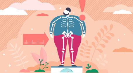 Про загрозу втрати здоров'я через ожиріння нагадали лікарі Кам'янського